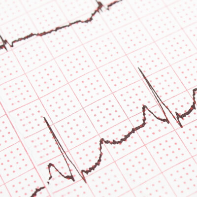 Heart rhythm disturbance (atrial fibrillation)