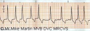 Heart Rhythm Disturbance (Atrial Fibrillation)